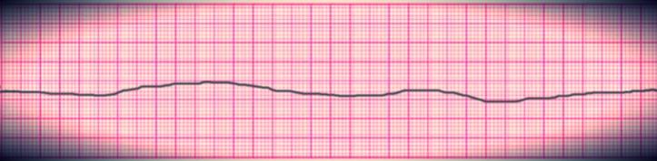 Graphic representation of no electric activity (shocks) as no defibrillation is done.