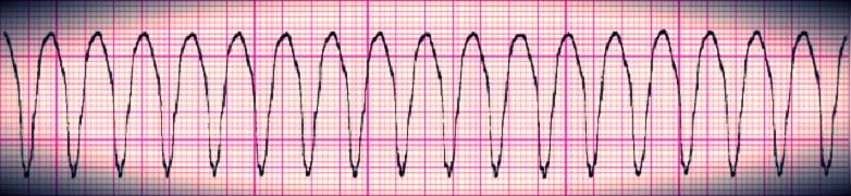 Ventricular tachycardia - good response after defibrillation and cardiac electrical shocks