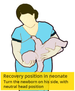 Neonate - recovery position - to help it breathing