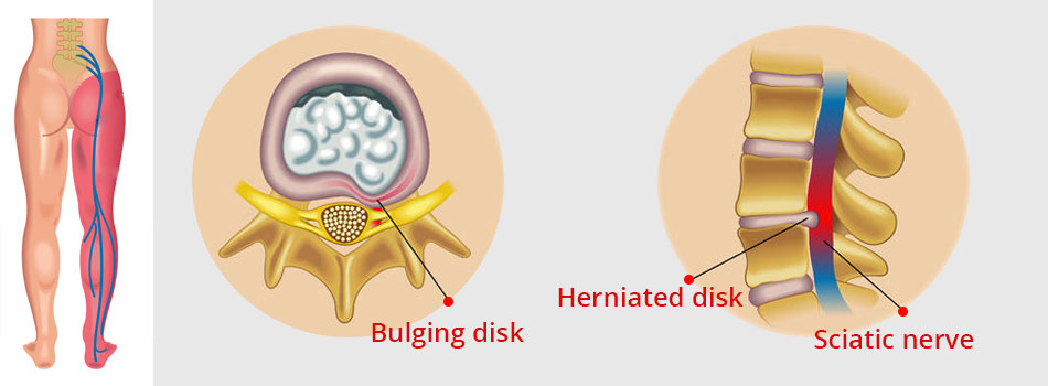 disk herniation and sciatic nerve - spine affections